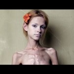 【閲覧注意】拒食症の患者たち【骨と皮だけ】
