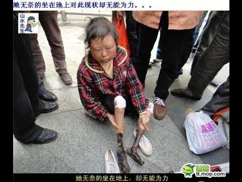 【衝撃】中国の路上でミイラ化した足の女性が助けを求めている!