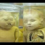 世界一怖い博物館!『デュピュイトラン博物館』(フランス)