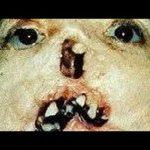 【感染症】梅毒の患者数が5千人を初突破 !