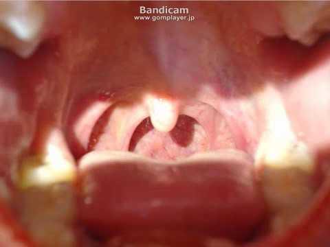 女性の喉チンコ